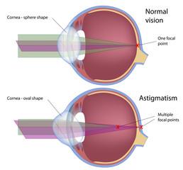 אסטיגמציה בעיניים